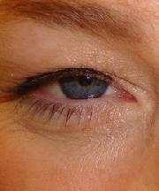 Vrouw, 43 jaar voor de ooglift