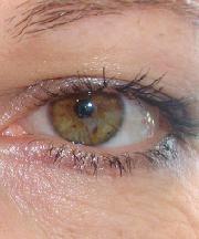Vrouw, 44 jaar voor ooglidcorrectie